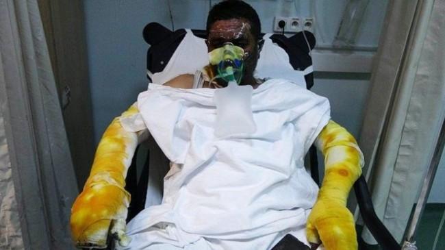 Yangından ailesini kurtardı, kendisi yandı